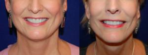 Facelift patient by Dr. Carpenter