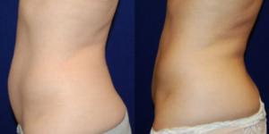 Liposuction patient of Dr. Carpenter