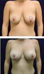 Carpenter breast lift patient