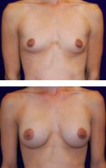 Carpenter breast lift patient 2