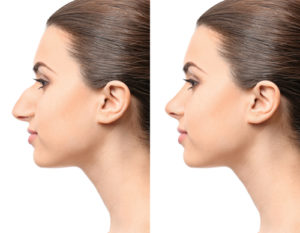 Young woman model before and after rhinoplasty