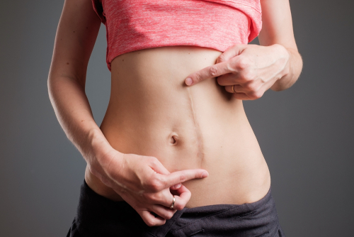 European woman with long abdominal scars after operation standing on black color-img-blog