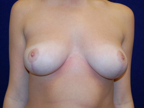 Breast Reduction in Dallas, TX After Patient 2