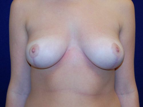 Breast Reduction in Dallas, TX After Patient 1