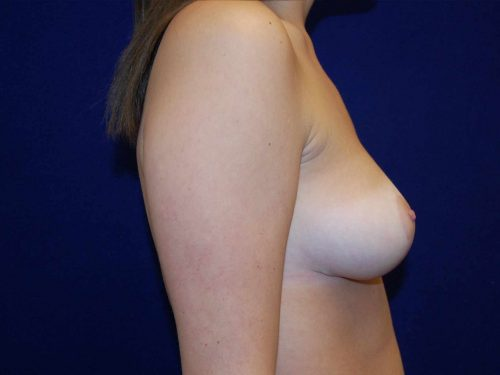 Breast Reduction in Dallas, TX After Patient 3
