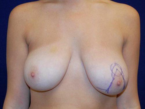 Breast Reduction in Dallas, TX Before Patient 2