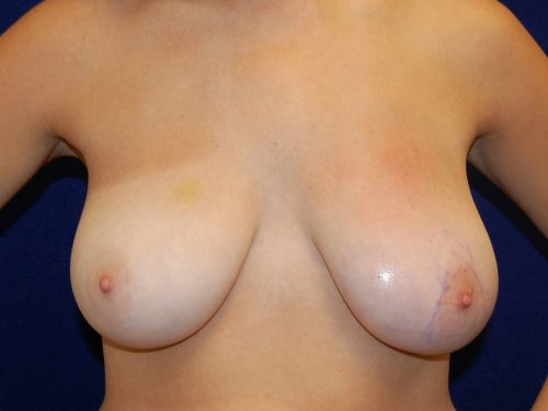 Breast Reduction in Dallas, TX Before Patient 1