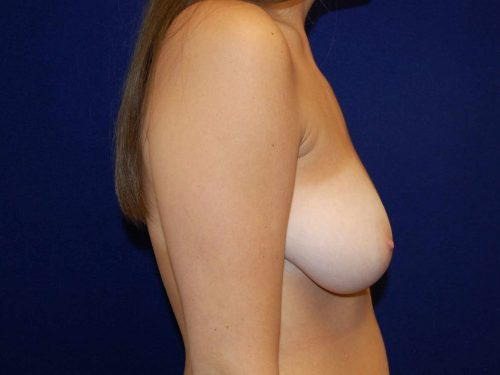 Breast Reduction in Dallas, TX Before Patient 3