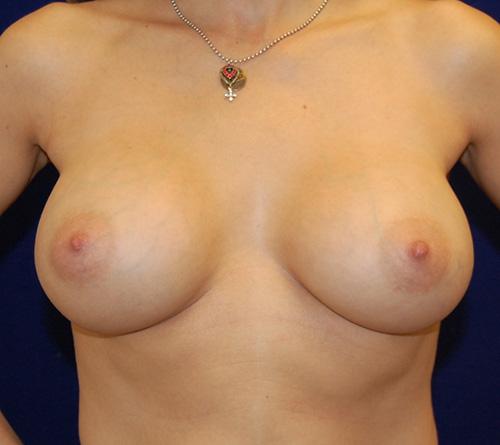 Breast Augmentation in Dallas, TX After Patient 1
