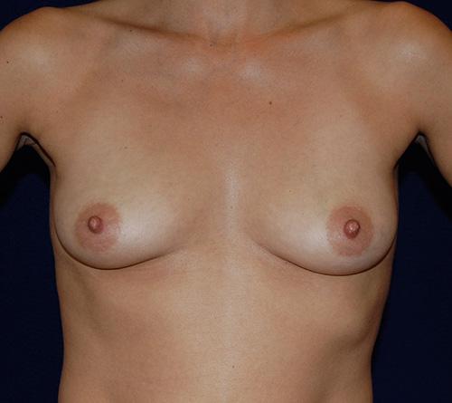 Breast Augmentation in Dallas, TX Before Patient 1