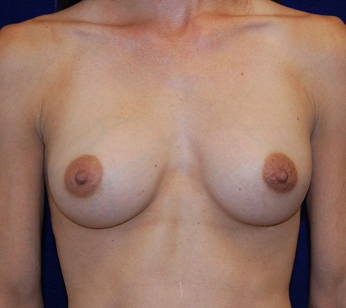 Breast Augmentation in Dallas, TX After Patient 2