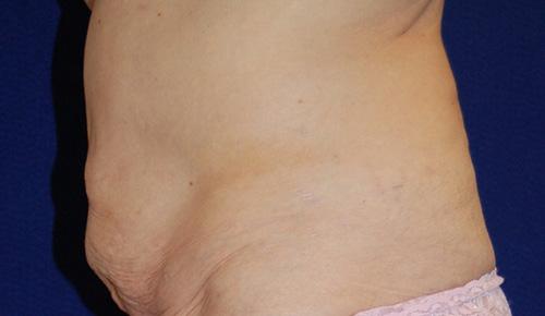 Tummy Tuck (Abdominoplasty) in Dallas, Texas Before Patient 2