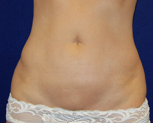 Liposuction in Dallas, TX After Patient 1