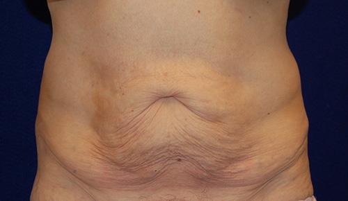 Tummy Tuck (Abdominoplasty) in Dallas, Texas Before Patient 1