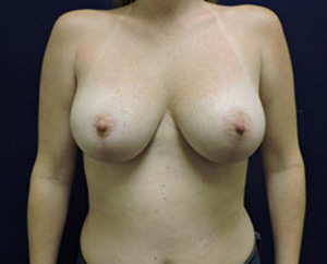 Breast Lift (Mastopexy) in Dallas, TX After Patient 1