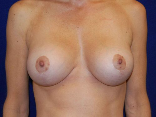 Breast Lift (Mastopexy) in Dallas, TX After Patient 2
