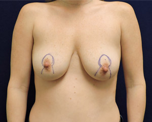 Breast Lift (Mastopexy) in Dallas, TX Before Patient 1