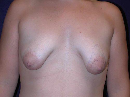 Breast Lift (Mastopexy) in Dallas, TX Before Patient 3