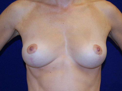 Breast Lift (Mastopexy) in Dallas, TX Before Patient 2