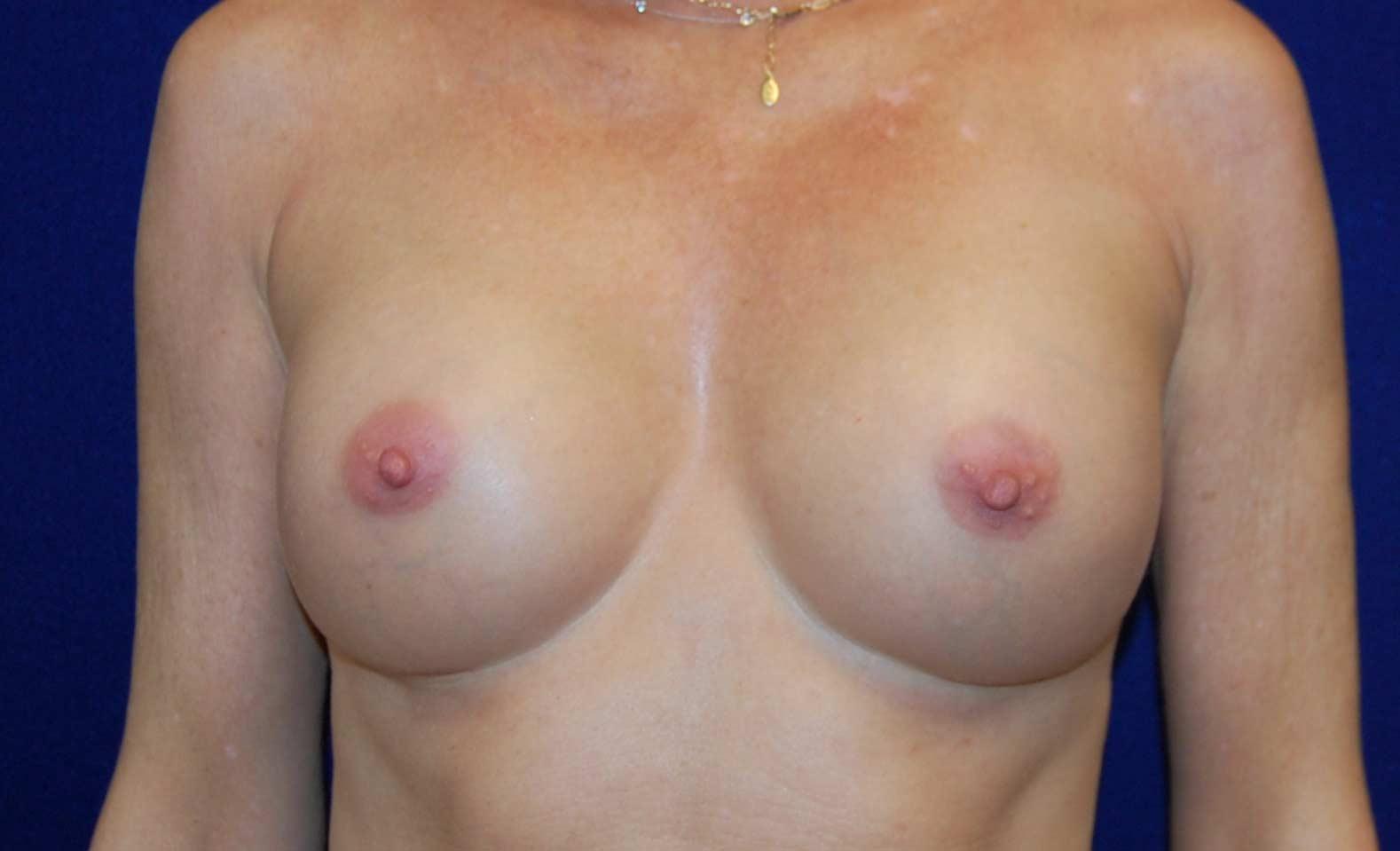Breast Augmentation in Dallas, TX After Patient 3