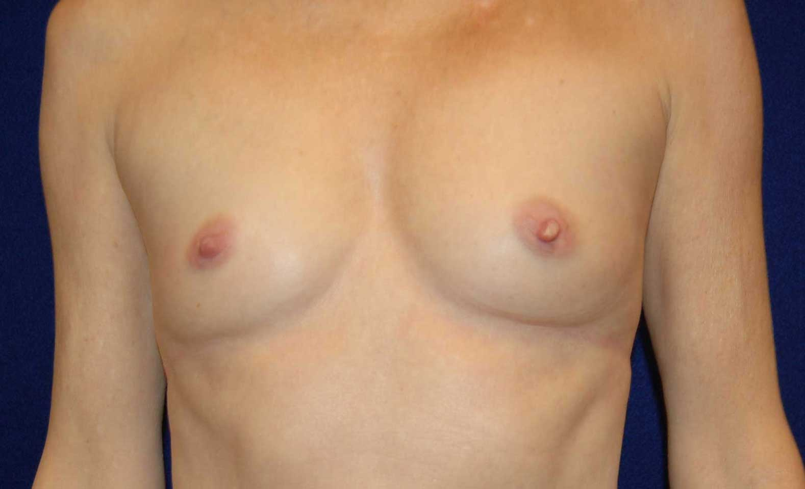 Breast Augmentation in Dallas, TX Before Patient 3