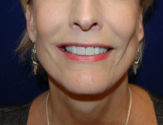 Facelift Surgery in Dallas, TX After Patient 1