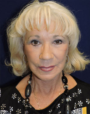 Facelift Surgery in Dallas, TX After Patient 2