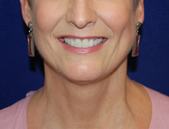 Facelift Surgery in Dallas, TX Before Patient 1