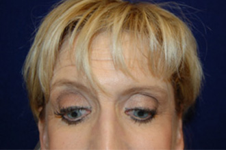 Eyelid Surgery in Dallas, TX After Patient 1